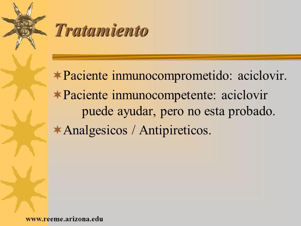 Tratamiento Paciente inmunocomprometido: aciclovir.
