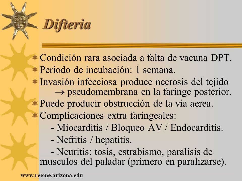 Difteria Condición rara asociada a falta de vacuna DPT.