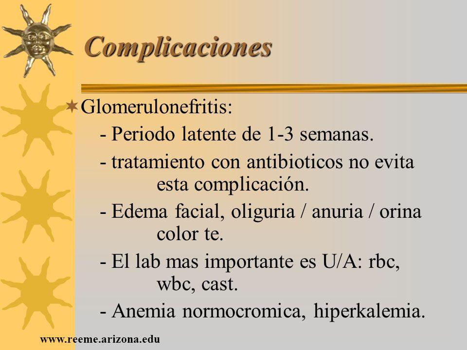 Complicaciones Glomerulonefritis: - Periodo latente de 1-3 semanas.