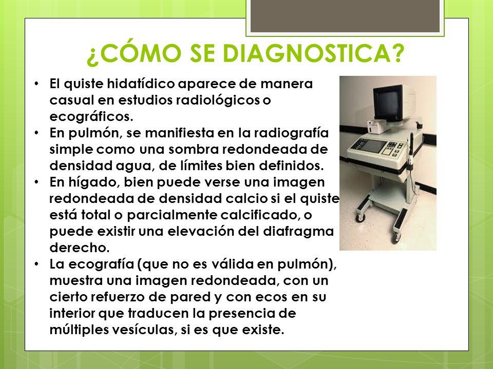 ¿CÓMO SE DIAGNOSTICA El quiste hidatídico aparece de manera casual en estudios radiológicos o ecográficos.