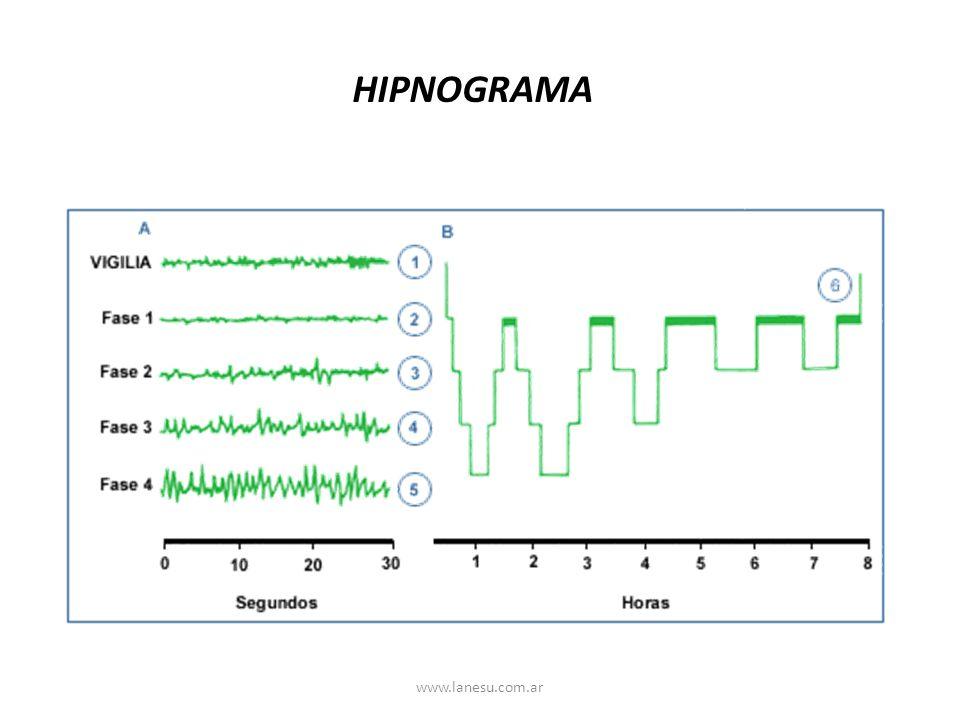 HIPNOGRAMA www.lanesu.com.ar
