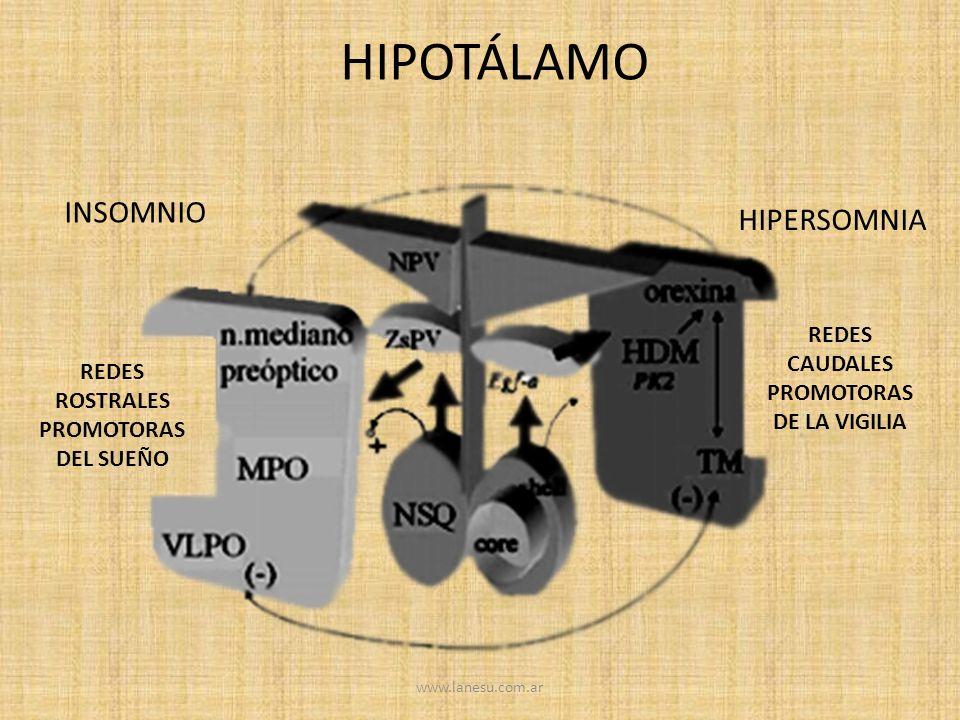 HIPOTÁLAMO INSOMNIO HIPERSOMNIA