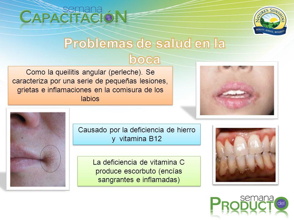 Problemas de salud en la boca