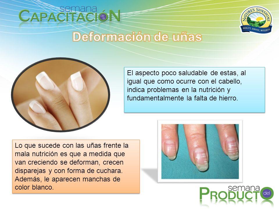 Deformación de uñas