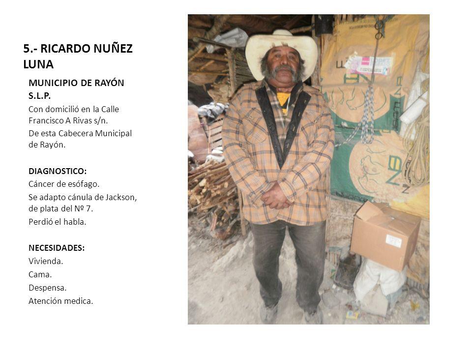 5.- RICARDO NUÑEZ LUNA MUNICIPIO DE RAYÓN S.L.P.