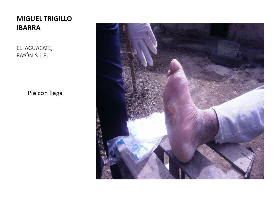 MIGUEL TRIGILLO IBARRA