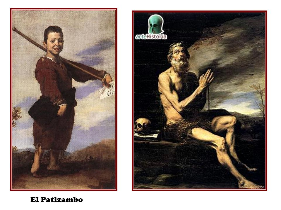 El Patizambo