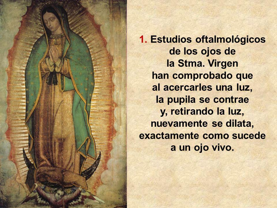 1. Estudios oftalmológicos de los ojos de la Stma. Virgen