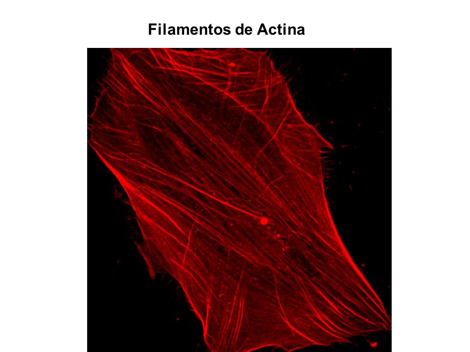 Filamentos de Actina