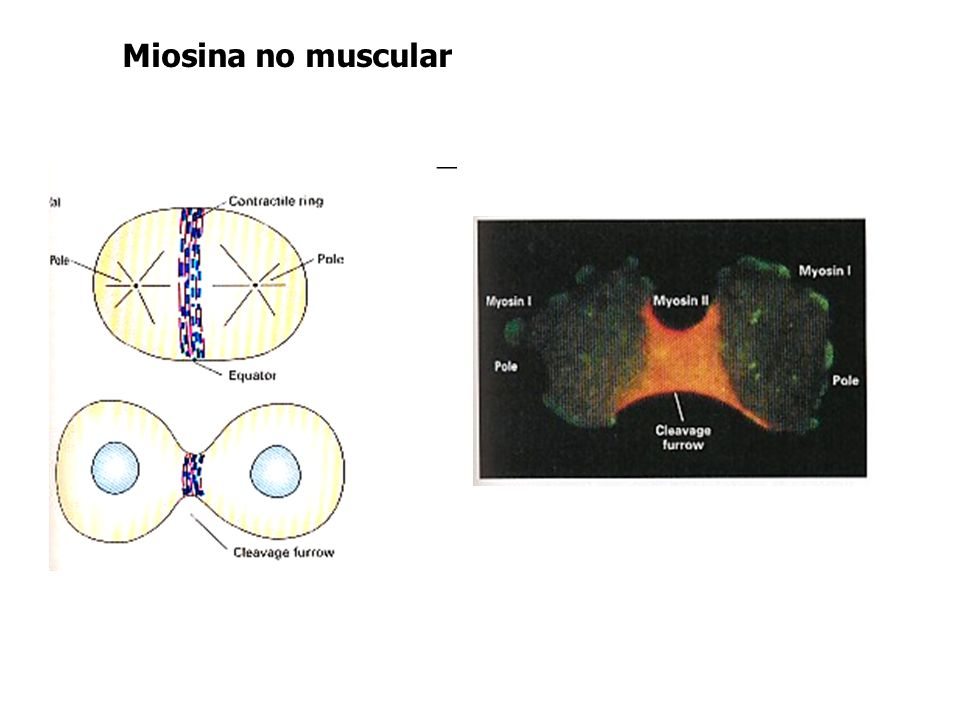 Miosina no muscular