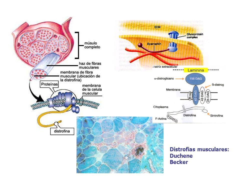 Distrofias musculares: