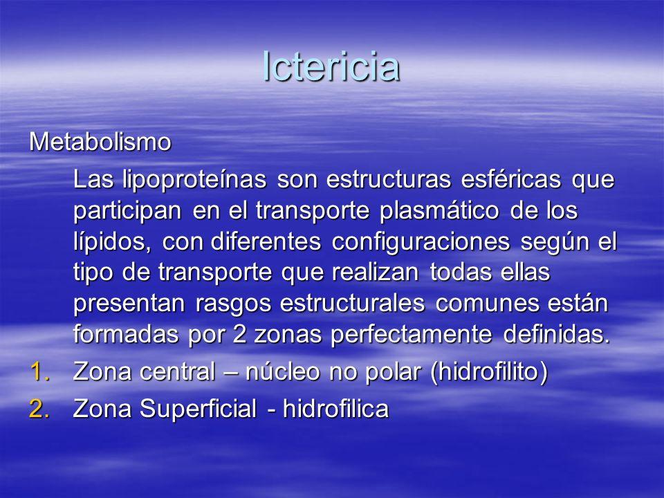 Ictericia Metabolismo