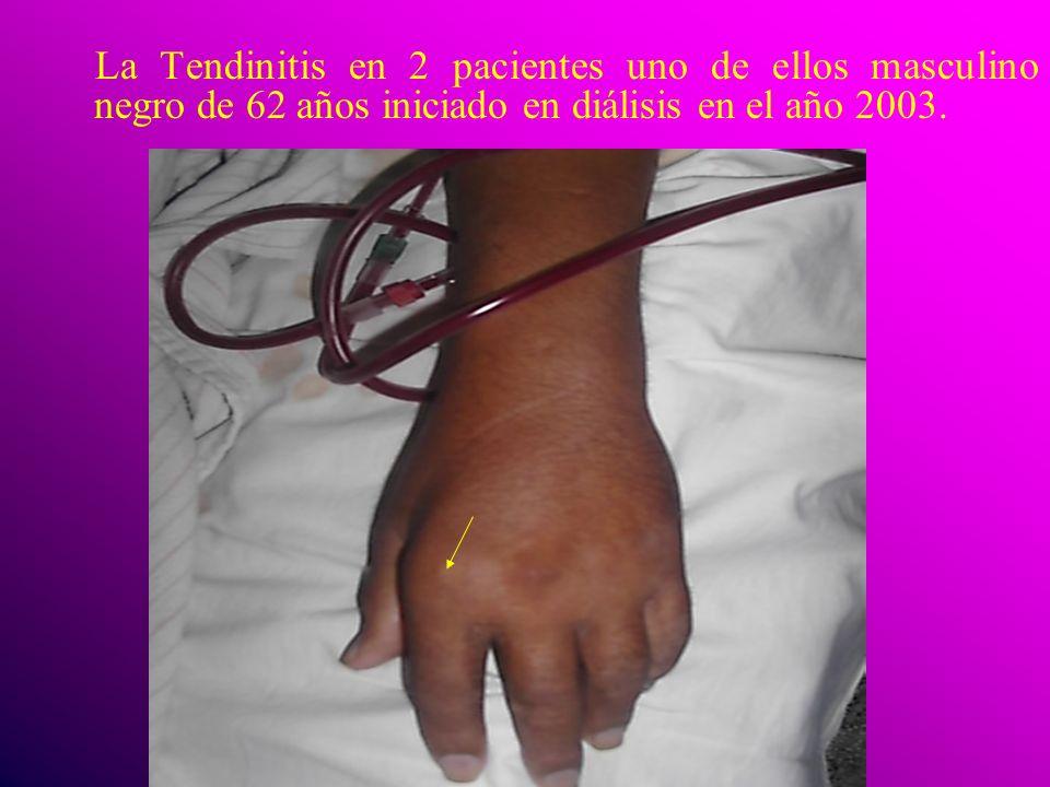 La Tendinitis en 2 pacientes uno de ellos masculino negro de 62 años iniciado en diálisis en el año 2003.