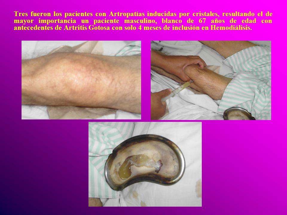 Tres fueron los pacientes con Artropatías inducidas por cristales, resultando el de mayor importancia un paciente masculino, blanco de 67 años de edad con antecedentes de Artritis Gotosa con solo 4 meses de inclusión en Hemodiálisis.