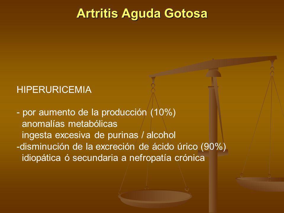Artritis Aguda Gotosa HIPERURICEMIA por aumento de la producción (10%)