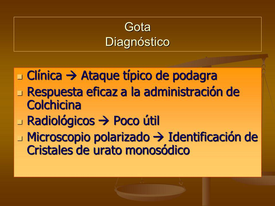 Gota Diagnóstico Clínica  Ataque típico de podagra. Respuesta eficaz a la administración de Colchicina.