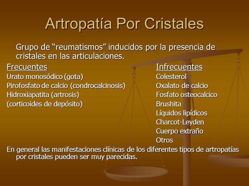 Artropatía Por Cristales