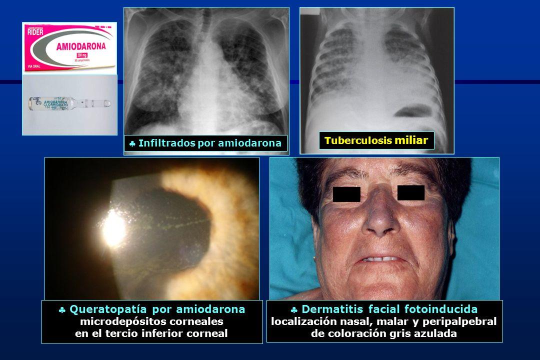  Queratopatía por amiodarona  Dermatitis facial fotoinducida