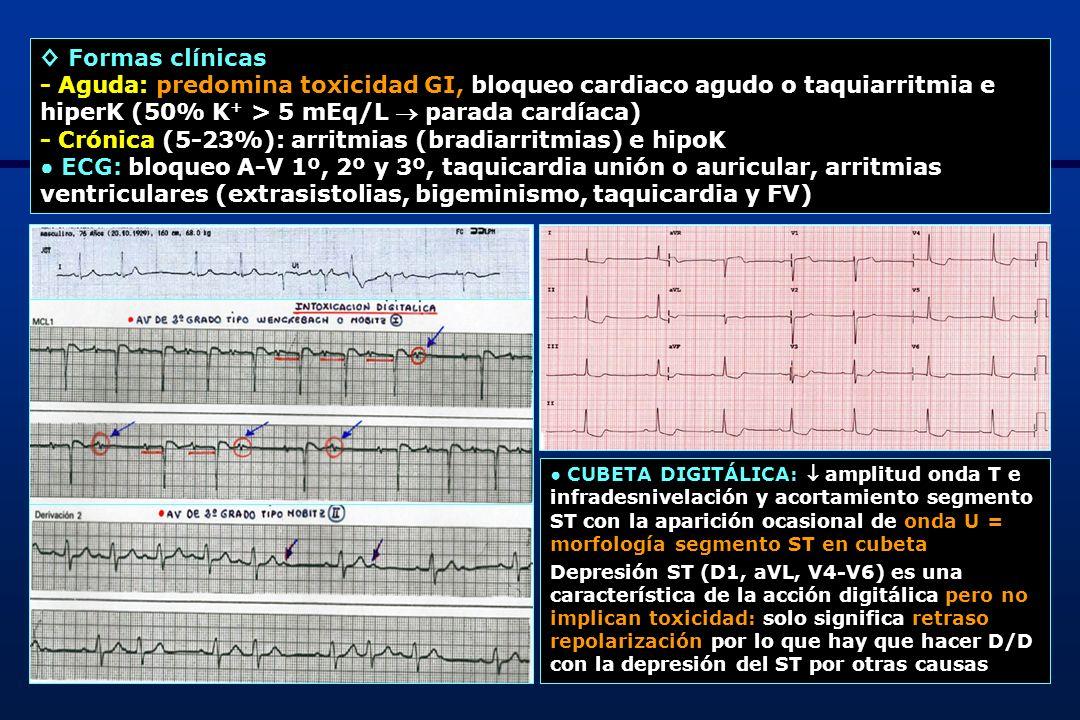 ◊ Formas clínicas - Aguda: predomina toxicidad GI, bloqueo cardiaco agudo o taquiarritmia e hiperK (50% K+ > 5 mEq/L  parada cardíaca)