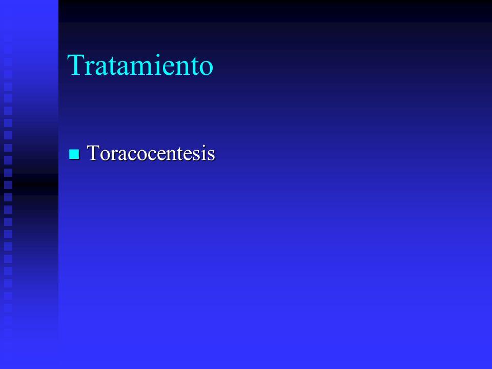 Tratamiento Toracocentesis