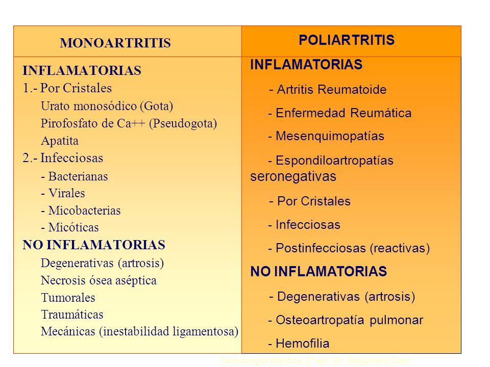 - Degenerativas (artrosis) MONOARTRITIS INFLAMATORIAS