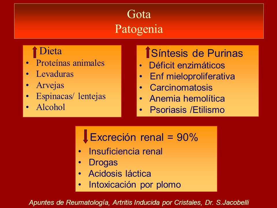 Gota Patogenia Dieta Síntesis de Purinas Excreción renal = 90%