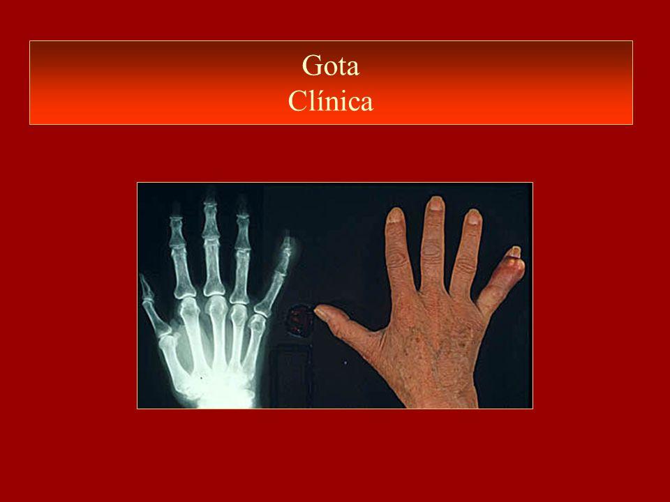 Gota Clínica