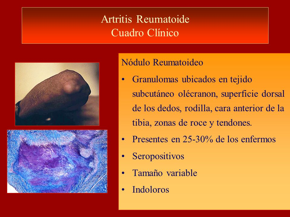 Artritis Reumatoide Cuadro Clínico