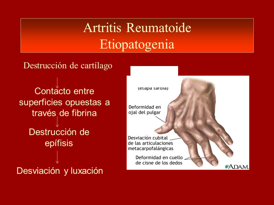 Artritis Reumatoide Etiopatogenia