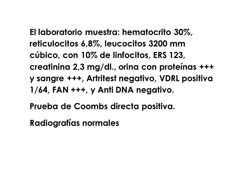 El laboratorio muestra: hematocrito 30%, reticulocitos 6,8%, leucocitos 3200 mm cúbico, con 10% de linfocitos, ERS 123, creatinina 2,3 mg/dl., orina con proteínas +++ y sangre +++, Artritest negativo, VDRL positiva 1/64, FAN +++, y Anti DNA negativo.