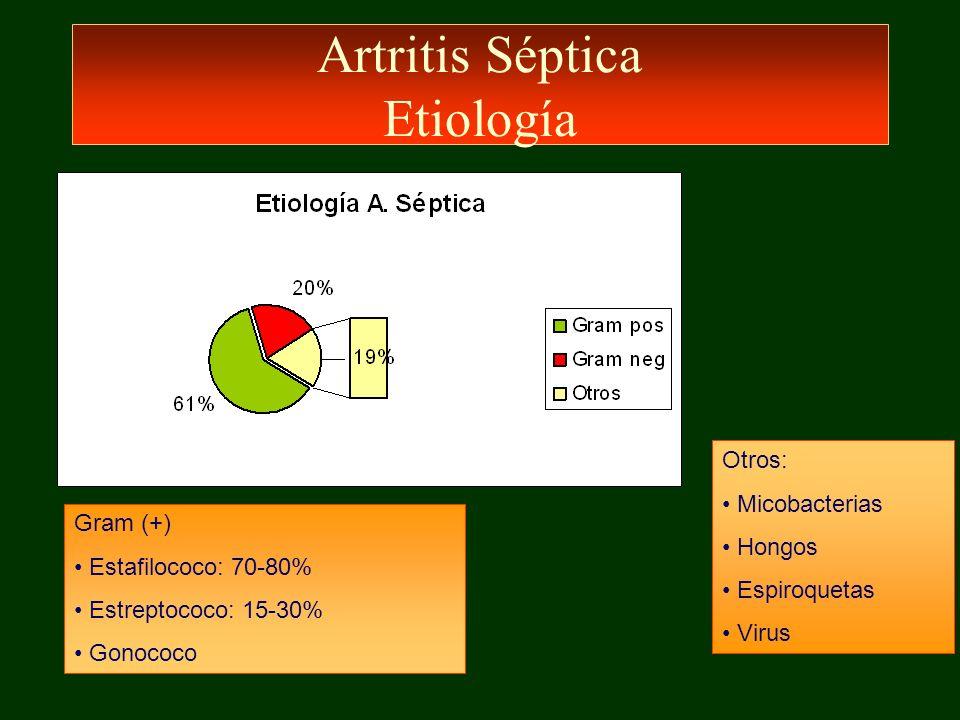 Artritis Séptica Etiología