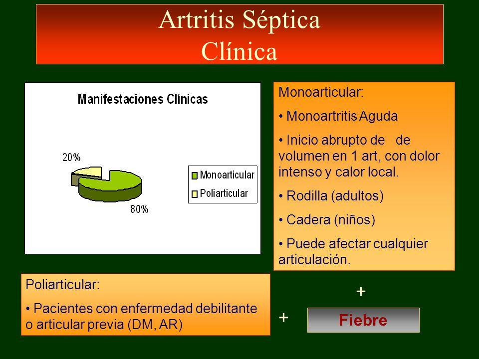 Artritis Séptica Clínica