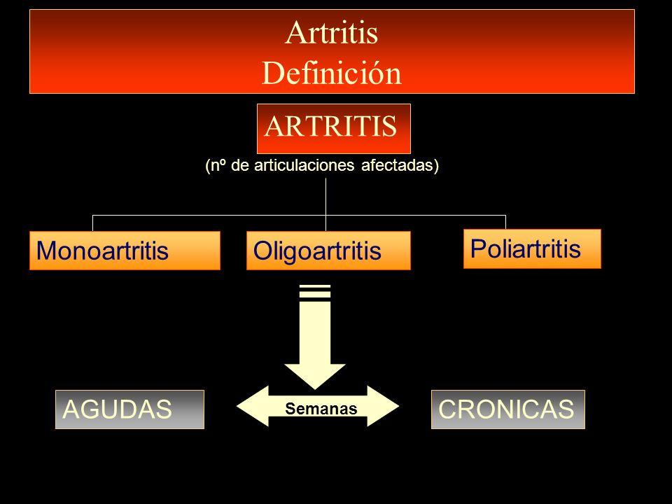 Artritis Definición ARTRITIS Monoartritis Oligoartritis Poliartritis