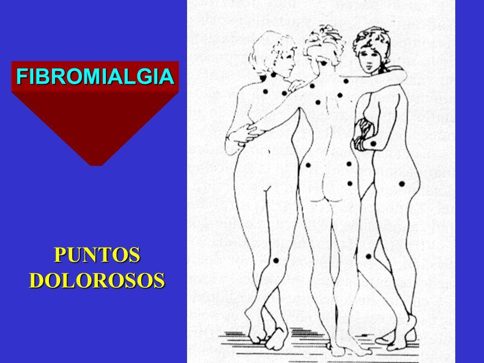 FIBROMIALGIA PUNTOS DOLOROSOS