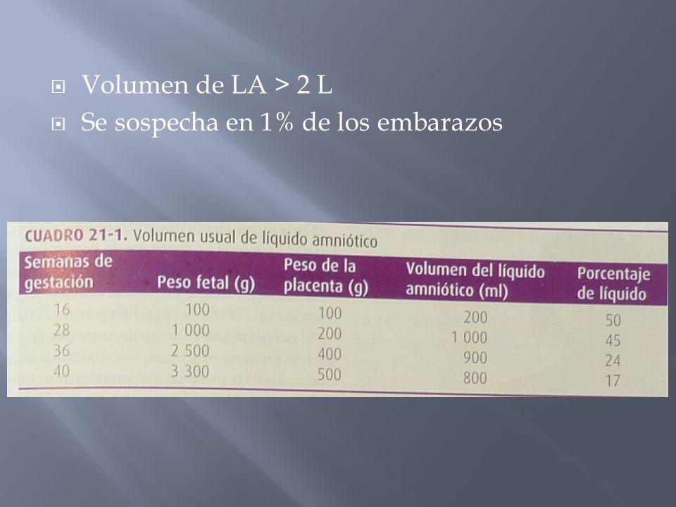 Volumen de LA > 2 L Se sospecha en 1% de los embarazos
