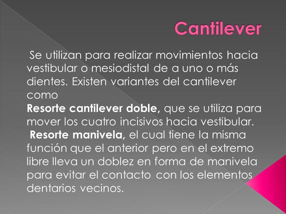 Cantilever Se utilizan para realizar movimientos hacia vestibular o mesiodistal de a uno o más dientes. Existen variantes del cantilever como.