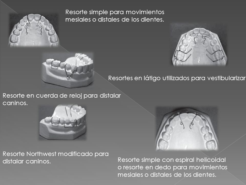 Resorte simple para movimientos mesiales o distales de los dientes.
