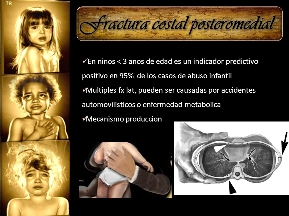 Fractura costal posteromedial