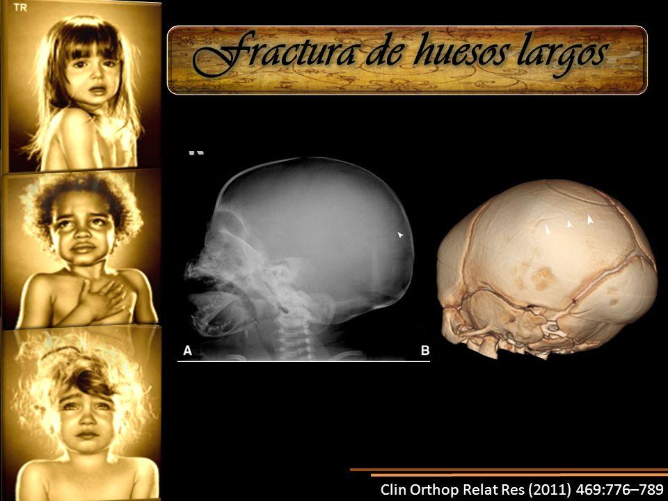Fractura de huesos largos