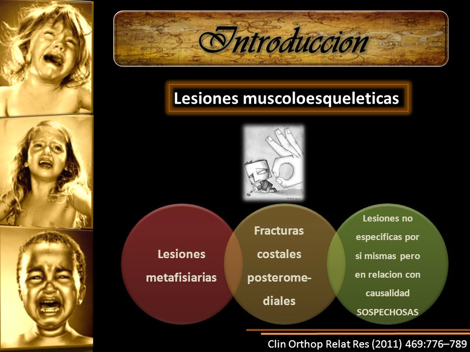 Lesiones metafisiarias Fracturas costales posterome-diales