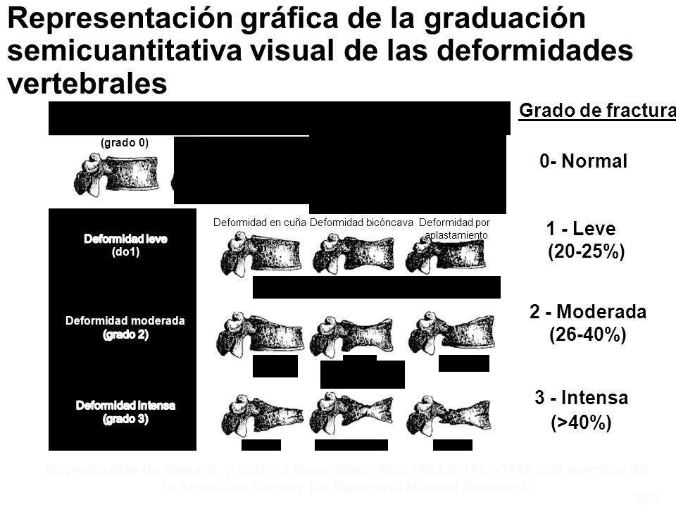 Representación gráfica de la graduación semicuantitativa visual de las deformidades vertebrales