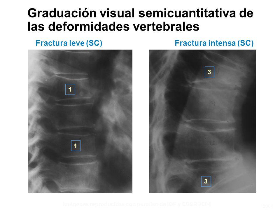 Graduación visual semicuantitativa de las deformidades vertebrales