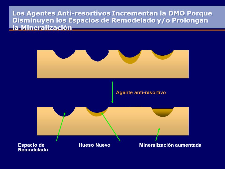 Los Agentes Anti-resortivos Incrementan la DMO Porque Disminuyen los Espacios de Remodelado y/o Prolongan la Mineralización