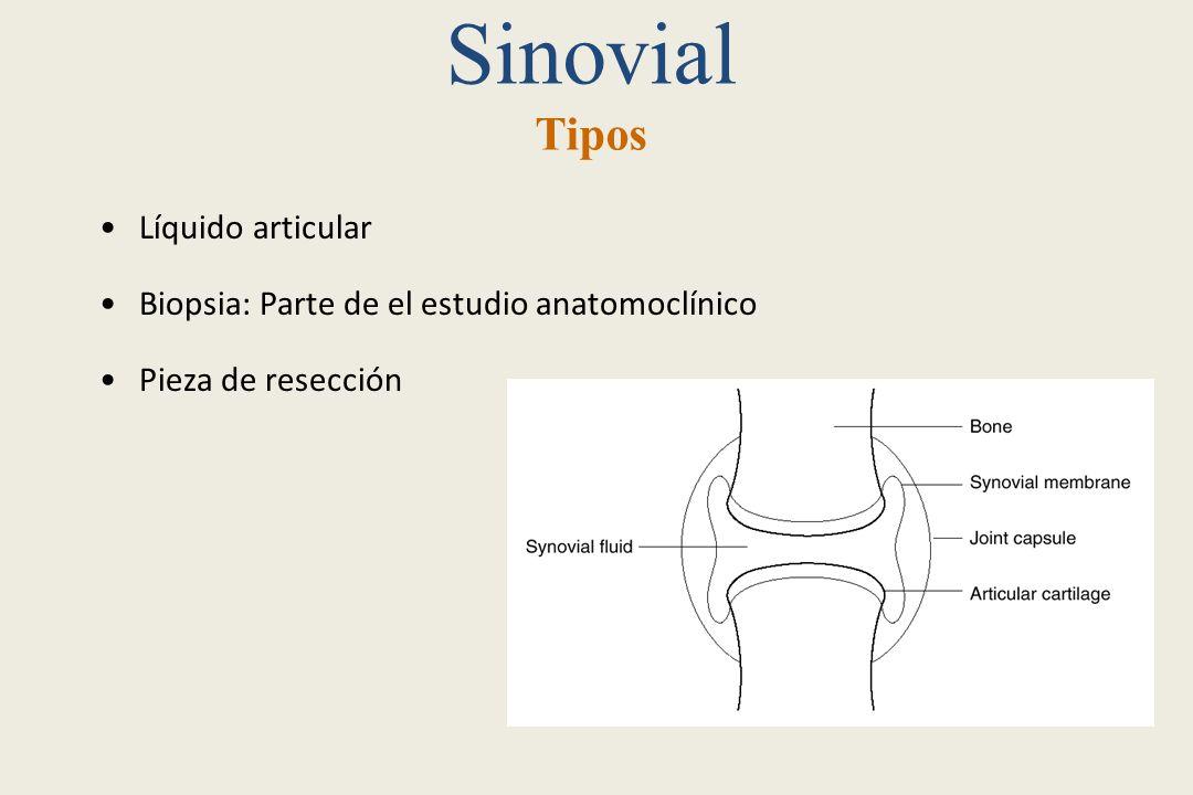Sinovial Tipos Líquido articular
