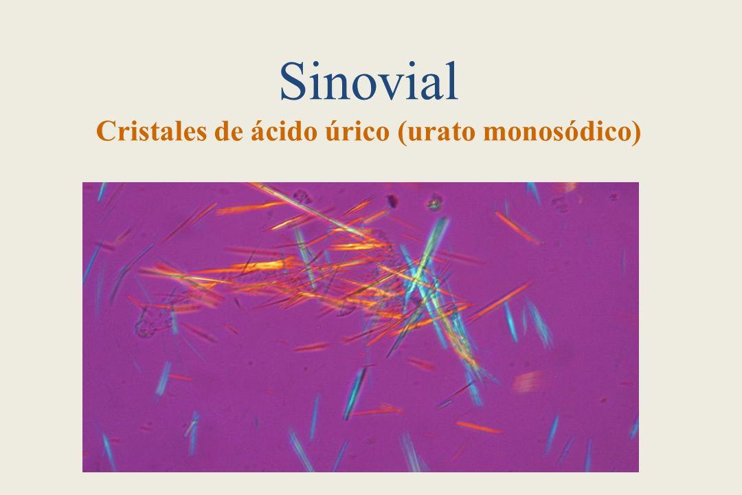 Sinovial Cristales de ácido úrico (urato monosódico)