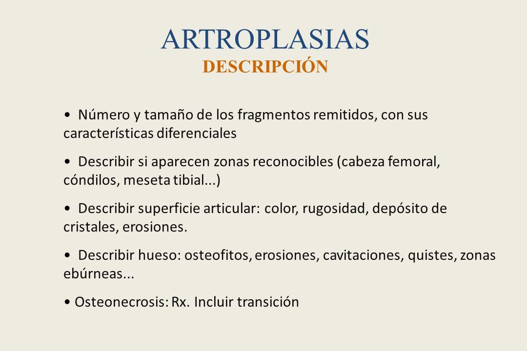 ARTROPLASIAS DESCRIPCIÓN