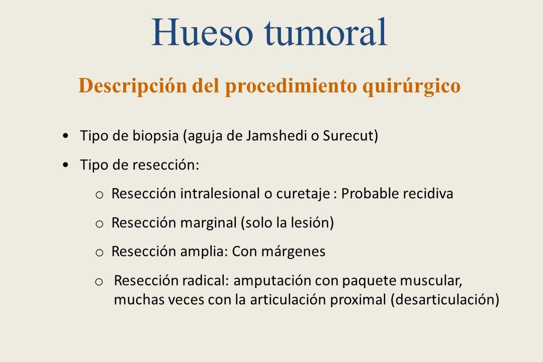 Hueso tumoral Descripción del procedimiento quirúrgico