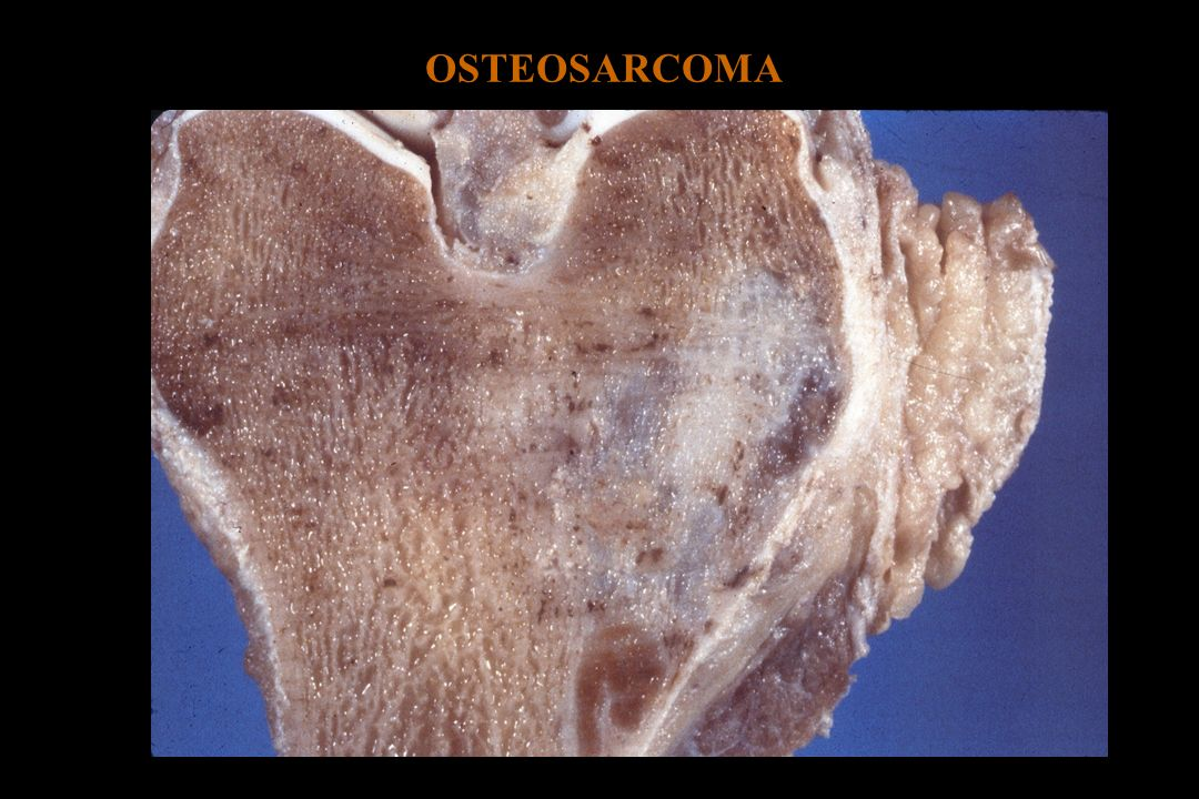 OSTEOSARCOMA