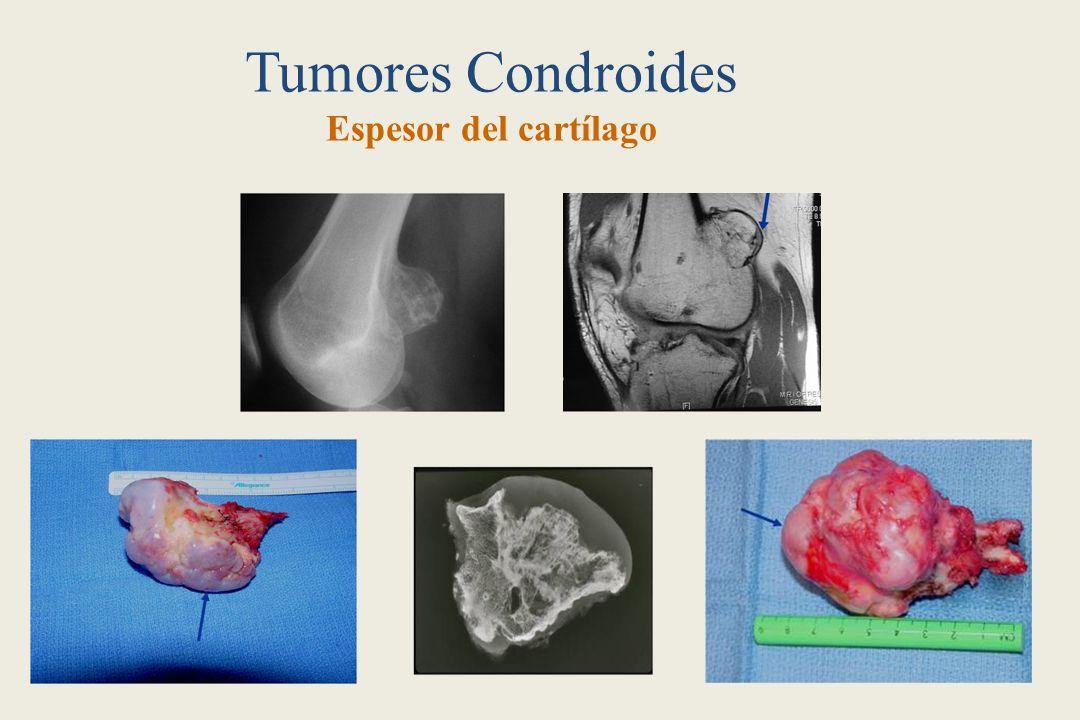Tumores Condroides Espesor del cartílago