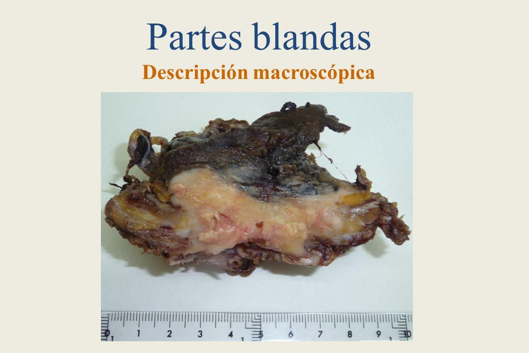 Partes blandas Descripción macroscópica